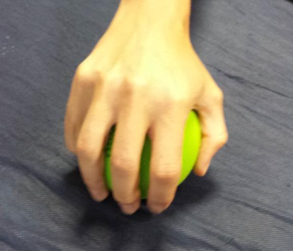 La habilidad de la mano es esencial para la integración escolar de niños con daños cerebrales.