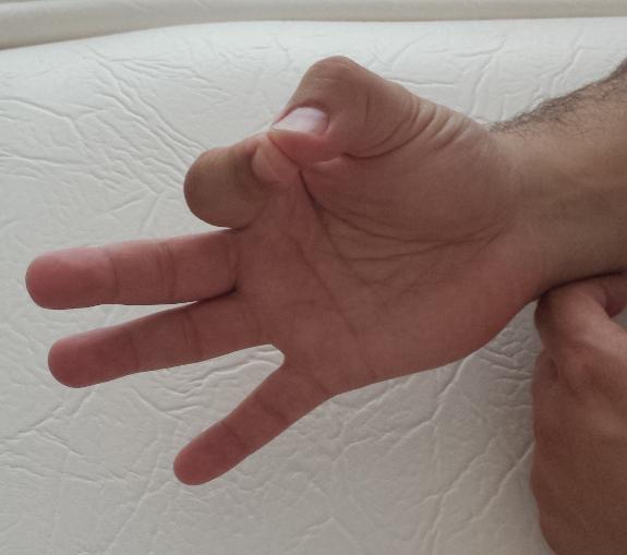 Ejercicios como el movimiento de dedos ayudan son comunes en niños con ataxia.