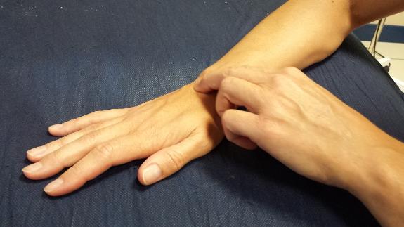 Fisioterapia para ataxia cerebelosa