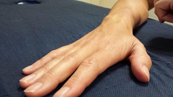 Recuperar la agilidad de la mano tras un ictus es uno de los primeros objetivos de la fisioterapia.