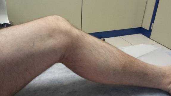 Tratamiento para la distrofia muscular